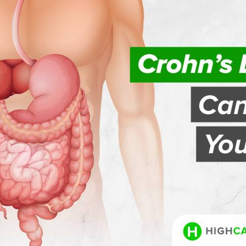 How Crohn's Disease Can Affect Your Body?