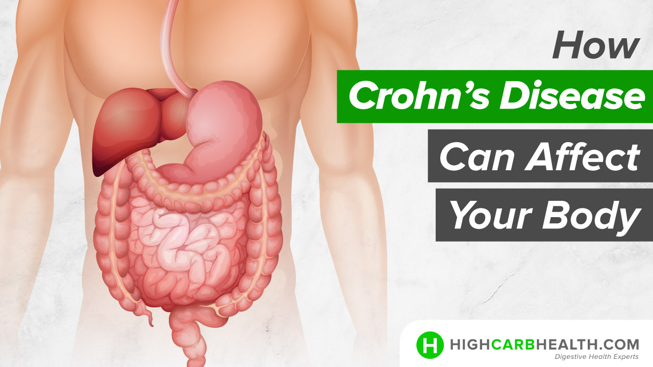 How Crohn's Disease Can Affect your Body - High Carb Health