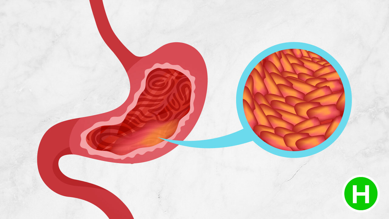 Types of Gastritis - High Carb Health
