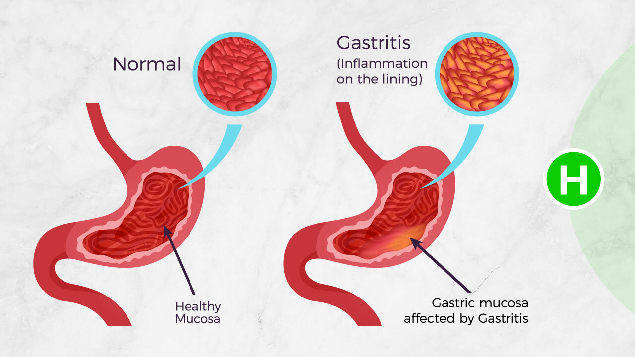 What Causes Gastritis - Highcarb Health