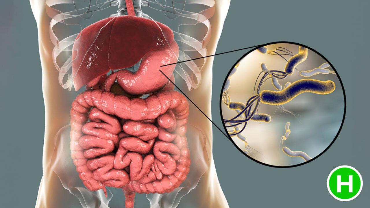 Gastritis Causes High Carb Health