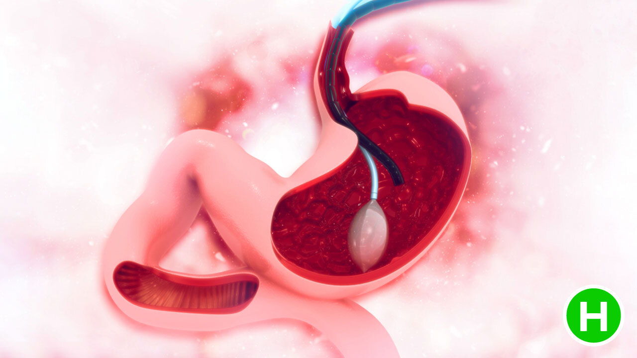 Gastritis Diagnosis - High Carb Health