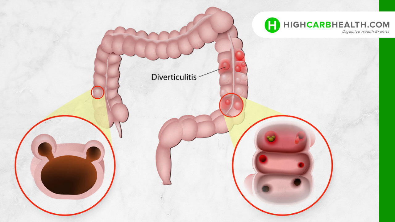 What is Diverticulitis - High Carb Health